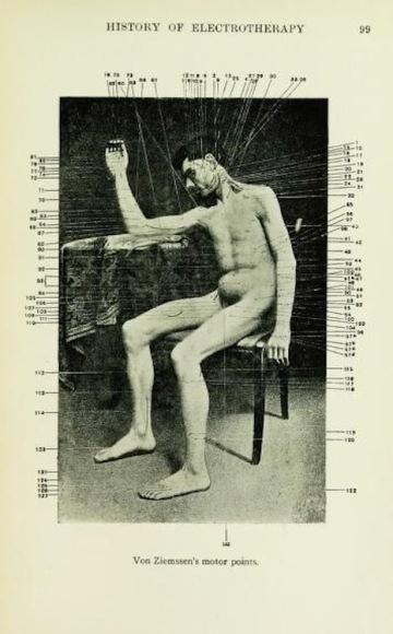 von ziemssen's motor points, 1922